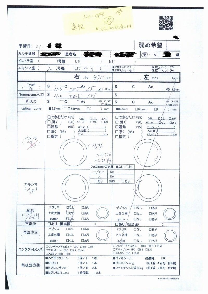 品川近視クリニック レーシック 過矯正 副院長の再手術 失敗のブログ-カルテ