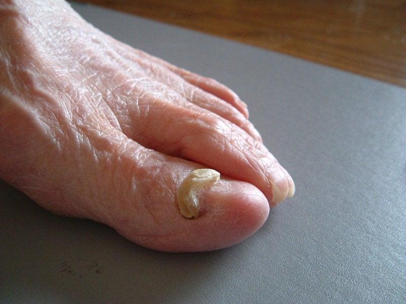 足の痛み、外反母趾など、靴の ...