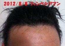 $フィンペシア体験記【育毛剤効果副作用】-薄毛回復体験談ブログ効果写真画像
