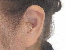 $スマイル『デコ補聴器』
