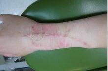 刺青除去の池袋サンシャイン美容外科-4334-2