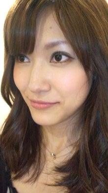 顎変形症~歯列矯正・外科手術~闘病記-120817_164336.jpg