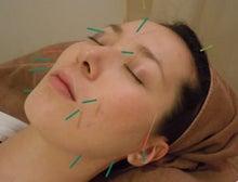 健志接骨院のブログ-美顔鍼灸
