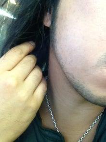 ヒゲ脱毛はじめました。-120903
