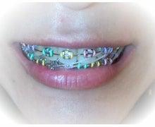 顎変形症~歯列矯正・外科手術~闘病記-120907_164538_ed.jpg