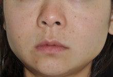 日本美容外科学会認定専門医Dr.石原の診療ブログ~いろんなオペやってます~-メソセラピー+サーマクール1