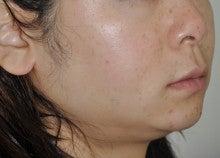 日本美容外科学会認定専門医Dr.石原の診療ブログ~いろんなオペやってます~-メソセラピー+サーマクール2