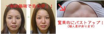 京都市小顔になる肩こりも解消子連れOK!リンパとアロマのサロン