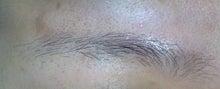 失敗する永久脱毛。行く前に写真口コミ体験談-まゆげ医療レーザー脱毛右