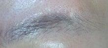 失敗する永久脱毛。行く前に写真口コミ体験談-まゆげの医療レーザー脱毛左