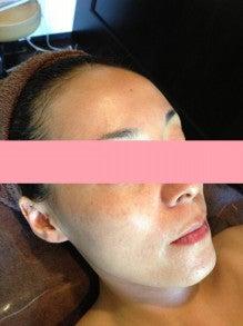 大阪市城東区:リンパを流して身体デトックス・お顔スッキリ「ラ・ルミエール」