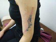 刺青除去の池袋サンシャイン美容外科-5785-2