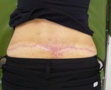 刺青除去の池袋サンシャイン美容外科-5535-2