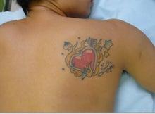 刺青除去の池袋サンシャイン美容外科-5906-1