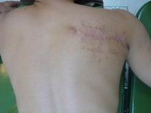 刺青除去の池袋サンシャイン美容外科-5906-2