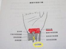 東灘区の背骨・骨盤歪み矯正処 松村カイロプラクティック-手根管症候群1