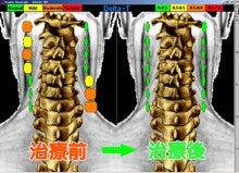 $治らない慢性症状なら【関西カイロプラクティック】大阪府池田市の整体院-C3000サーモグラフィー検査