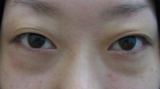 品川美容外科 鹿児島院 公式ブログ
