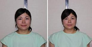 鹿屋市 美容整体 肩コリ腰痛は当たり前!美容鍼で顔もキレイに整えます。-鹿屋 顔の美容鍼 整体 口コミ 評価