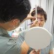 全切開重瞼術症例の解…