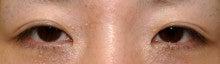 日本美容外科学会認定専門医Dr.石原の診療ブログ~いろんなオペやってます~