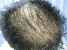 薄毛治療・発毛治療・AGA治療認定院・鹿児島三井中央クリニック-まえ2
