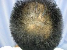 薄毛治療・発毛治療・AGA治療認定院・鹿児島三井中央クリニック-まえ3