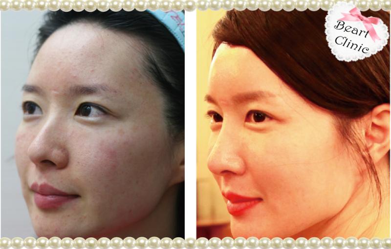 韓国の美容整形外科・美容皮膚科で働く女の日記