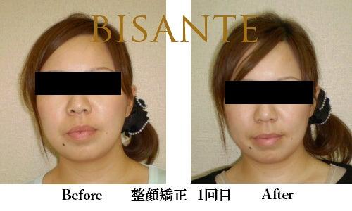 1回でも違いが判る!品川の小顔矯正、エラ張り矯正☆美・サンテ-モデル3