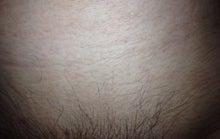 局部脱毛(「陰部+肛門+お尻」の脱毛)に挑戦するブログ!