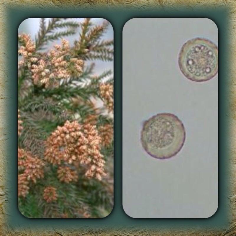 電子顕微鏡で日常の身近なものを見てみた【若干  …