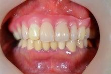 ミネ歯科医院 歯のこと、口のこと、皆で一緒に勉強しようよ。