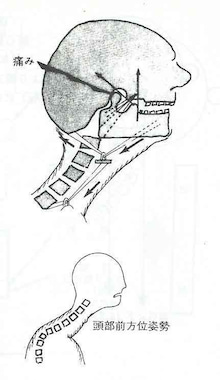$腰痛・肩こりを整体&エクササイズで根本から改善!西新宿おくがわ整体院blog 新宿 西新宿 中野 渋谷-頭部前方姿勢と首の関係