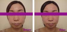 小顔整顔 施術前後のお写真