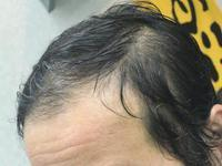 $【薄毛でもカットで劇的に変わる!】岐阜山県市の理容室ヘアーサロンさつま