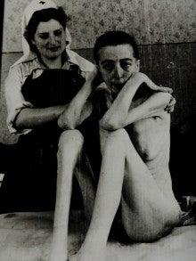 アウシュヴィッツ強制収容所 痩せ細ってしまった女性達