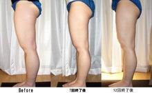 目黒区大岡山のアロマ・ストーンマッサージ セラピールーム・ブラン-脚痩せ
