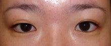 日本美容外科学会認定専門医Dr.石原の診療ブログ~いろんなオペやってます~タウン形成外科クリニック-二重まぶた他院修正3