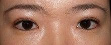 日本美容外科学会認定専門医Dr.石原の診療ブログ~いろんなオペやってます~タウン形成外科クリニック-二重まぶた他院修正3術後