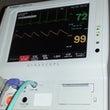 気管支鏡検査は不思議…