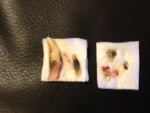 $ビッキーミルキーのブログ-右上の犬歯他数本