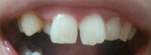 大人の歯科矯正(床矯正)-2ヶ月