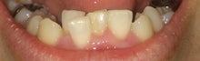 大人の歯科矯正(床矯正)-1ヶ月 下