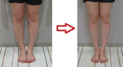 $綱島の加圧トレーニング 脂肪が燃えて痛みが消えるダイエット法!