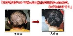 毛髪診断士 小林弘子の発毛育毛の成功例・薄毛ハゲ予防 髪を増やすには?