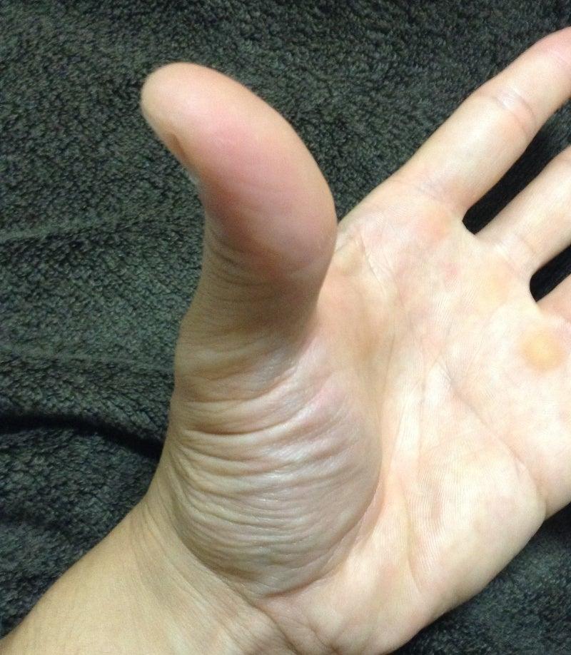 脳卒中片麻痺回復を諦めない「ラクール訪問リハビリマッサージ」のブログ手について考える。。。②母指と示指の対立のリハビリコメント