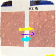 三十路突入!結婚したい症候群のイタい恋の話-picture.png