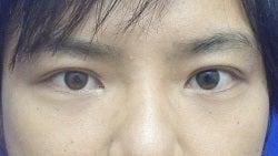 SBC横浜院 Dr藤巻のごゆるりブログ-A-009-2A3-a1m.JPG