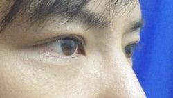 SBC横浜院 Dr藤巻のごゆるりブログ-A-008-2A3-a1mr.jpg
