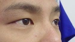 SBC横浜院 Dr藤巻のごゆるりブログ-A-008-2A3-br.jpg